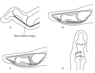 dx code for longus tendon tear