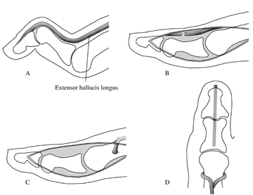 Correction Of Clawed Hallux Deformity Comparison Of The