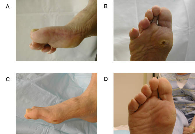 Postoperative lateral and plantar views