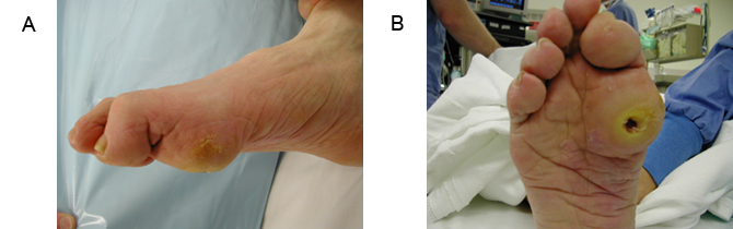 Preoperative lateral and plantar views