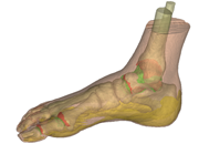 a finite element foot model