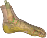 Finite element foot model